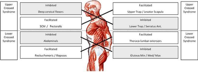 Горен и долен кръстосан синдром
